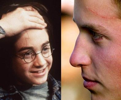 Cicatrices de Harry Potter y el Principe William